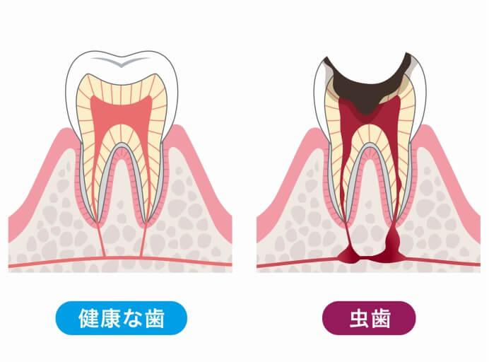 痛みの少ないむし歯治療