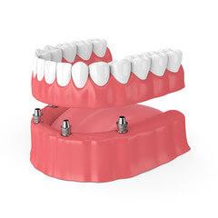 歯が全部ないケース