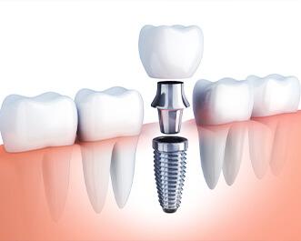 歯の欠損を補う治療「インプラント治療」